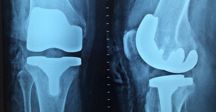Arthroscanner du genou